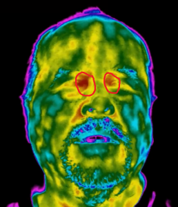 Thermal image of tear duct for elevated body temperature screening